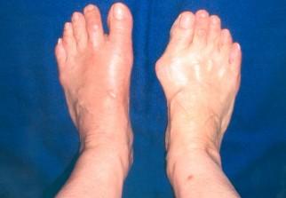 chirurgie oignon pied